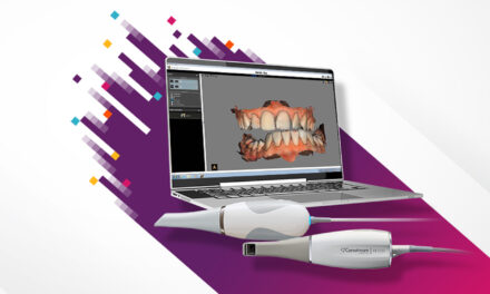 Carestream Dental Releases Latest Update to CS ScanFlow