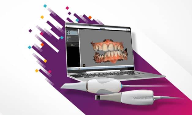 Carestream Dental Releases Latest Update to CS ScanFlow