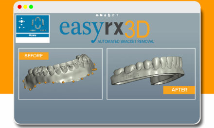 EasyRX 3D Automated Bracket Removal Software Released