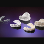 Keystone, Henkel Partnership Produces New 3D Dental Modeling Resin