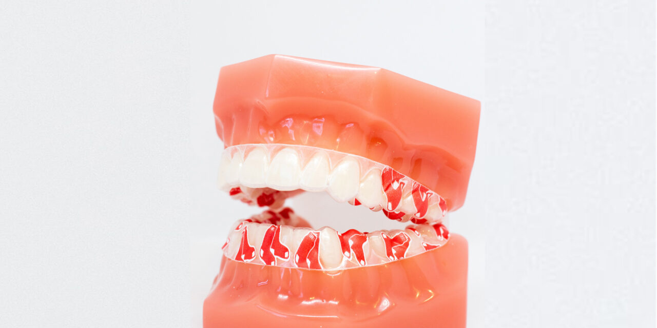 Dentagrafix Launches Major League Baseball Collection for Orthodontic Retainers