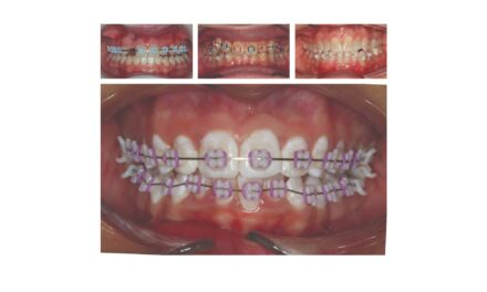 How 3D Printing Makes Hybrid Orthodontic Treatment Possible
