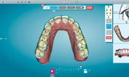 Clinical Products Spotlight: New Tools Make Complex Cases Even Easier