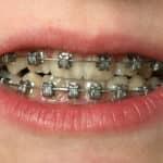 Orthodontic Wire Linked to Pediatric Appendicitis