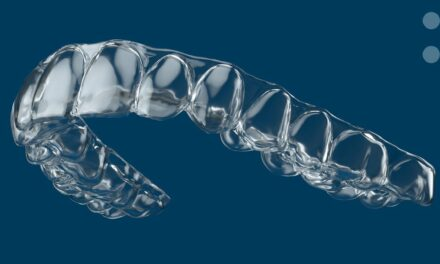 Pressing the Boundaries of Aligners Expectations