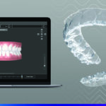 Industry Insider: 3M Clarity Offers Two in One Flex + Force Aligner Treatment