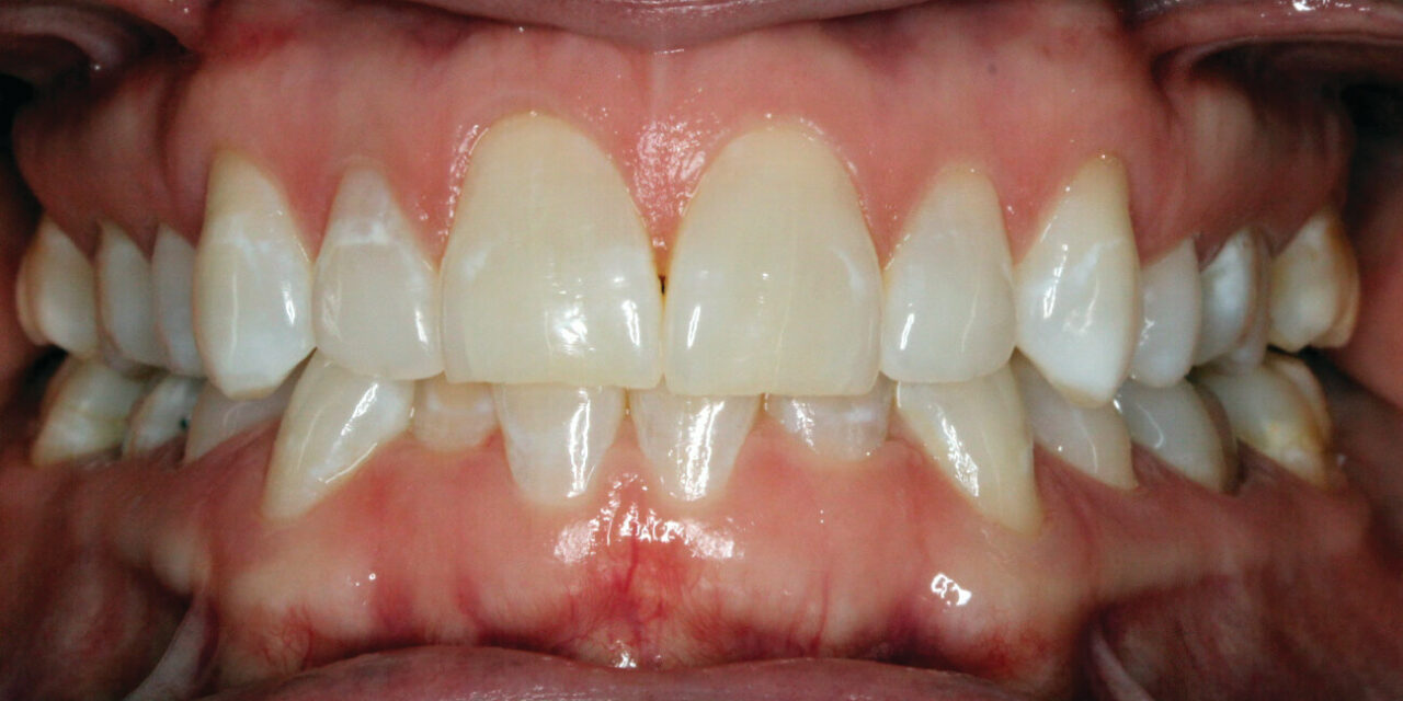Clear Aligner Management of Adult Orthodontic Relapse Case
