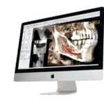 Anatomage Announces New 3D Dental Technology Subsidiary, Osteoid