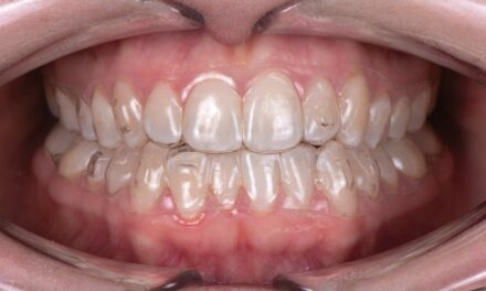 SureSmile Aligners and the Class I with Moderate Class III Pattern