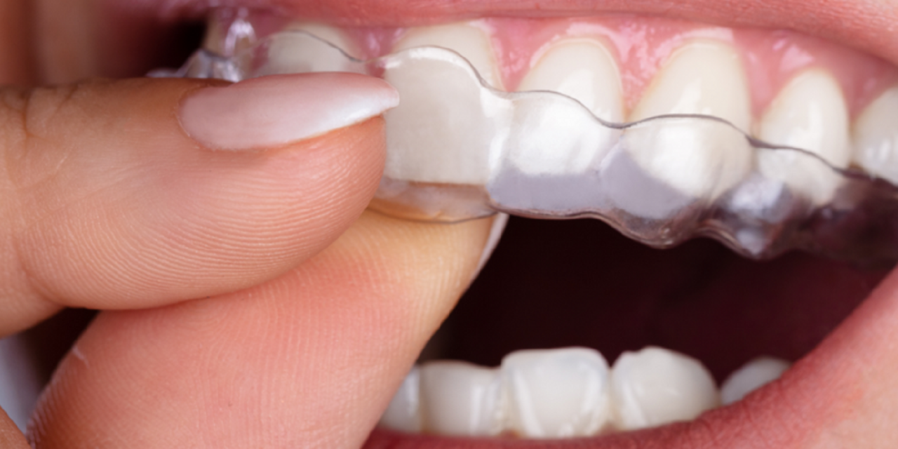 StarAlignersPro Clear Aligner Program Now Available in 21 States